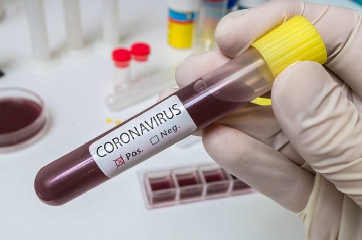 16% des 6 793 prélèvements effectués depuis le 24 février, se sont révélés positifs au coronavirus - Illustration © iStockphoto