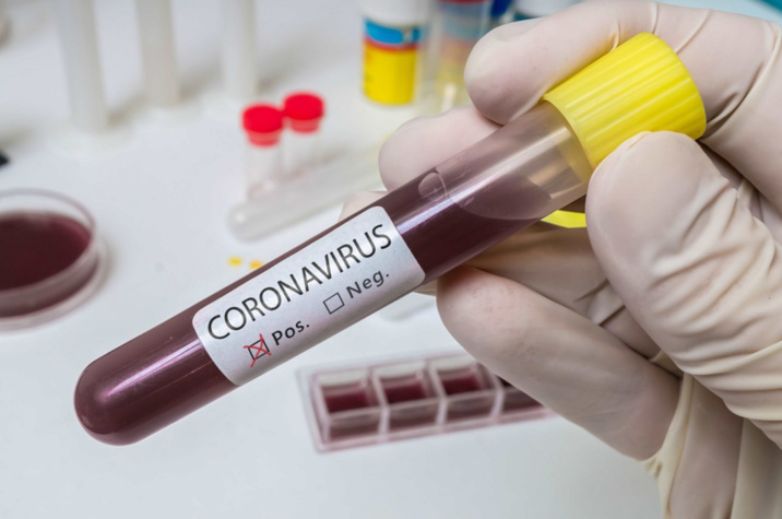 Coronavirus : encore 18 décès en 24 heures, mais hospitalisations en léger recul en Normandie
