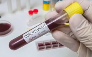 Coronavirus : 6 nouveaux décès et 126 nouveaux cas confirmés en Normandie en 24 heures