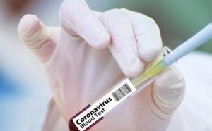 Coronavirus : deux nouveaux clusters identifiés en Seine-Maritime, à Belbeuf et Fécamp