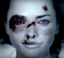 Trois femmes battues portent plainte : la triste réalité des violences conjugales dans l'Eure